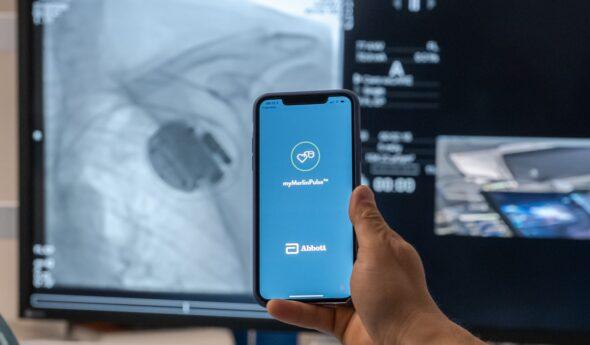 Raport TGR: telemonitoring pacjentów kardiologicznych zurządzeniami wszczepialnymi